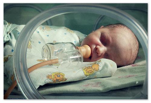 Почему дети рождаются с желтушкой