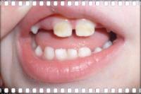 Больные зубки